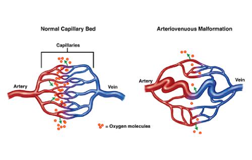 脳動静脈奇形に対するガンマナイフ治療