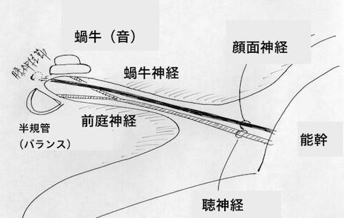ガンマナイフ治療 内耳道の解剖